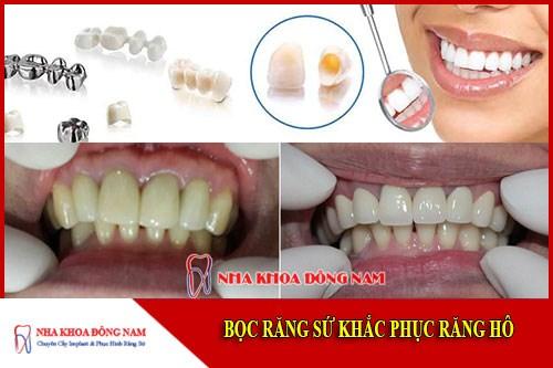Bọc răng sứ khắc phục răng bị hô