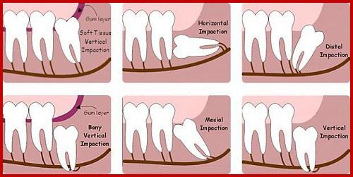 các chức năng của răng là gì? có nên nhổ hết làm lại không 3