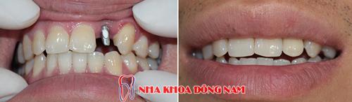 trường hợp cấy ghép 1 trụ implant cho răng cửa bên bị mất 1