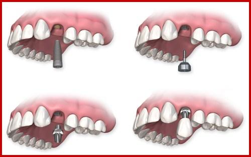 Cấy ghép 1 trụ implant phục hồi răng số 2 bị mất 1