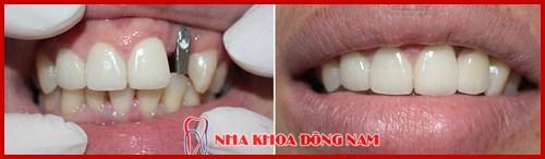 Cấy ghép 1 trụ implant phục hồi răng số 2 bị mất 3