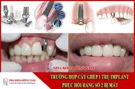 Cấy ghép 1 trụ implant phục hồi răng số 2 bị mất