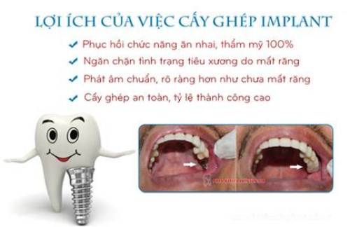 Cấy ghép 2 trụ implant gắn 4 răng sứ 1