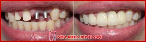 Cấy ghép 2 trụ implant gắn 4 răng sứ 2