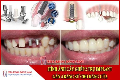 Cấy ghép 2 trụ implant gắn 4 răng sứ
