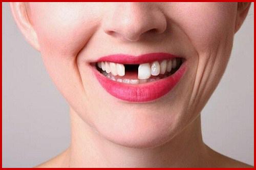 Cấy ghép 4 trụ Implant và phục hình 4 răng sứ 1