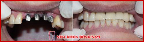 Cấy ghép 4 trụ Implant và phục hình 4 răng sứ 2