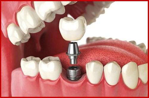 Cấy ghép implant và phục hình răng sứ 1