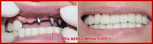 Cấy ghép implant và phục hình răng sứ 2