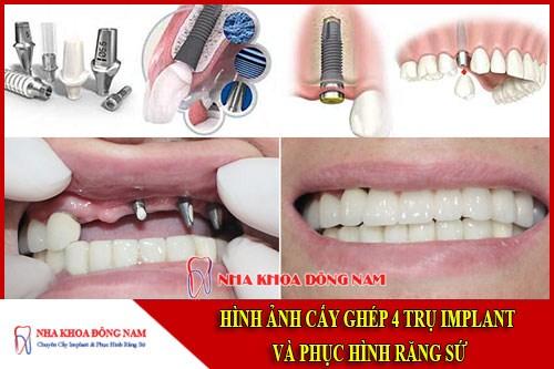 Cấy ghép implant và phục hình răng sứ