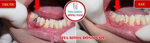 Cấy ghép implant cho răng số 5 2