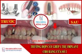 cấy ghép implant phục hôi cho răng cửa số 2