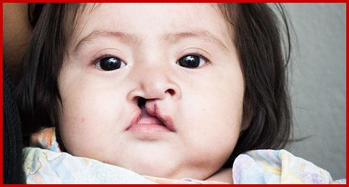 Chia sẻ một số cách điều trị sứt môi 1