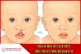 Chia sẻ một số cách điều trị sứt môi