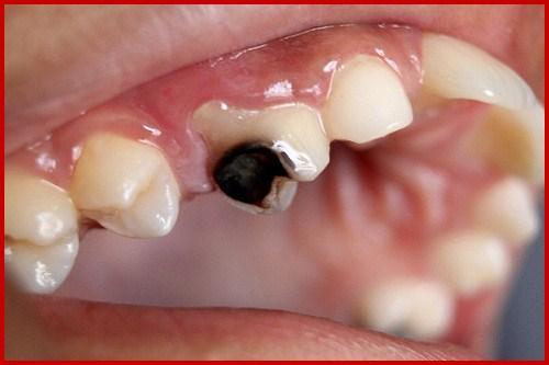có nên tự ý chữa sâu răng tại nhà không 1