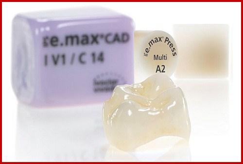 Hình ảnh bọc răng sứ cho răng mọc lộn xộn 1