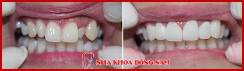 Hình ảnh bọc răng sứ cho răng mọc lộn xộn 2