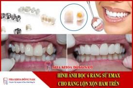 Hình ảnh bọc răng sứ cho răng mọc lộn xộn