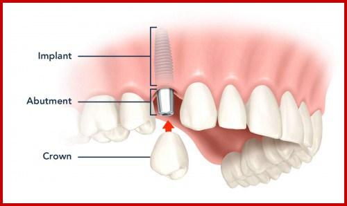Cấy ghép Implant và phục Hình răng sứ hàm trên 1