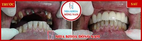 hình ảnh Cấy ghép Implant và phục Hình răng sứ hàm trên 2