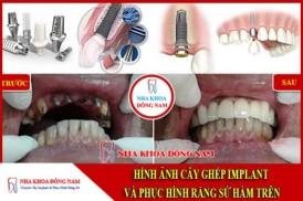 Cấy ghép Implant và phục Hình răng sứ hàm trên
