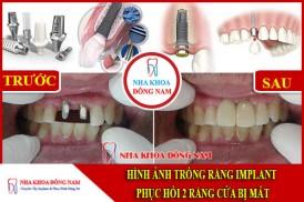 Cấy ghép Implant phục hình 2 răng cửa