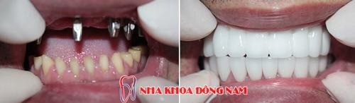 Hình ảnh cấy ghép implant hàm trên và phục hình 2 hàm răng sứ1