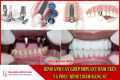 Hình ảnh cấy ghép implant hàm trên và phục hình 2 hàm răng sứ