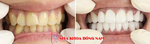 trường hợp làm răng sứ toàn hàm cho răng ố vàng và lệch lạc 1