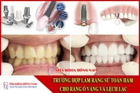 trường hợp làm răng sứ toàn hàm cho răng ố vàng và lệch lạc