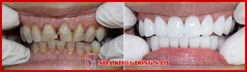 nha khoa chuyên thiết kế nụ cười – tái tạo lại vẻ đẹp hàm răng 7
