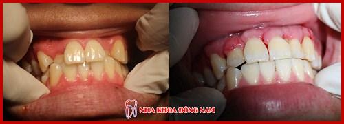 nha khoa chuyên thiết kế nụ cười – tái tạo lại vẻ đẹp hàm răng 8