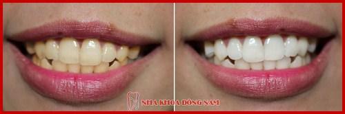 nha khoa chuyên thiết kế nụ cười – tái tạo lại vẻ đẹp hàm răng 9