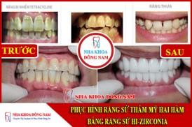 Phục hình răng sứ hai hàm bằng sứ HI-Zirconia