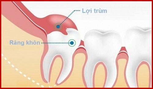 Răng bị lợi trùm là gì cách chữa trị ra làm sao 1