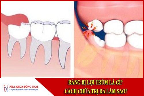 Răng bị lợi trùm là gì cách chữa trị ra làm sao