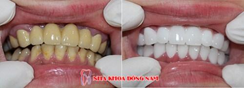 Tetracycline là gì - răng bị nhiễm kháng sinh thì phải làm sao 12