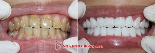 Tetracycline là gì - răng bị nhiễm kháng sinh thì phải làm sao 13