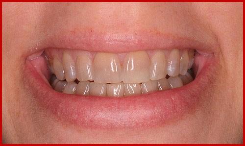 Tetracycline là gì - răng bị nhiễm kháng sinh thì phải làm sao 2