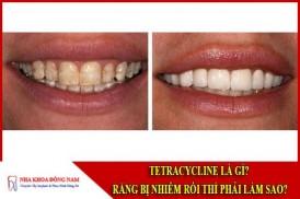 Tetracycline là gì - răng bị nhiễm kháng sinh thì phải làm sao