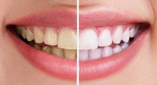Tetracycline là gì - răng bị nhiễm kháng sinh thì phải làm sao 3