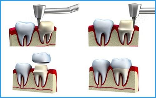 Tetracycline là gì - răng bị nhiễm kháng sinh thì phải làm sao 5