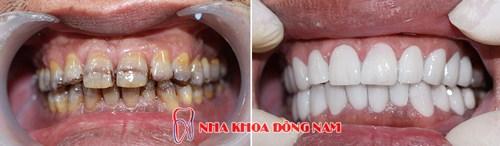 Tetracycline là gì - răng bị nhiễm kháng sinh thì phải làm sao 7