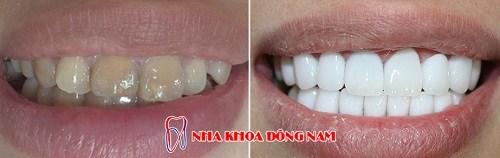 Tetracycline là gì - răng bị nhiễm kháng sinh thì phải làm sao 8