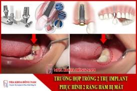 Cáy 2 trụ Implant phục hình 2 răng sứ