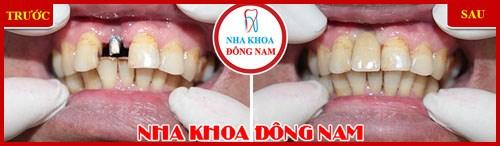 Cấy implant răng cửa 2