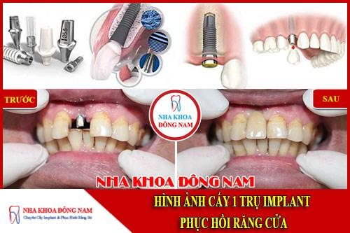 Cấy implant răng cửa
