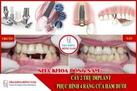 Cấy Ghép Implant răng cửa hàm dưới