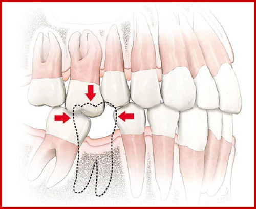 Cấy ghép 2 trụ implant cho 2 răng hàm bị mất 1