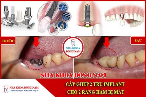 Cấy ghép 2 trụ implant cho 2 răng hàm bị mất
